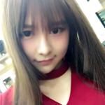 【動画あり】SNH48の全身大火傷したメンバーの現在の姿・・・
