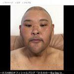 【悲報】安田大サーカスHIROがガチでヤバイ事になってる件・・・(写真あり)