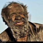 【画像】60年間お風呂に入らなかった男性はこうなるwwwwwwww