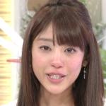 佐野アナ「目の下どうしたの?」岡副「あさがおに水をあげに行く時に柱に顔をぶつけて目の下の骨を折りました」