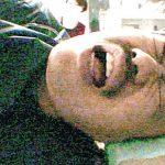 【画像】クロちゃん、大腸に腫瘍性ポリープ判明「死にたくない」切除手術へ・・・